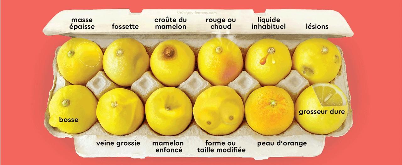 Campagne de communication Know your lemons